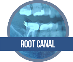 Root Canal width=